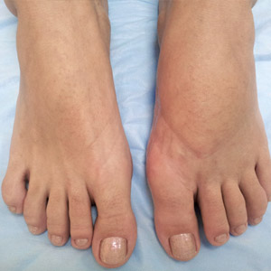 Как вылечить вальгусную деформацию пальцев стопы