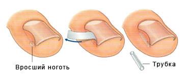 Как убирается вросшая ногтевая пластина