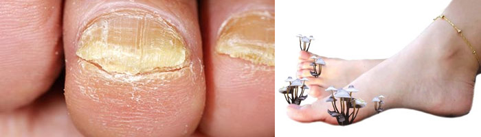Лечение грибка на ногтевых пластинах