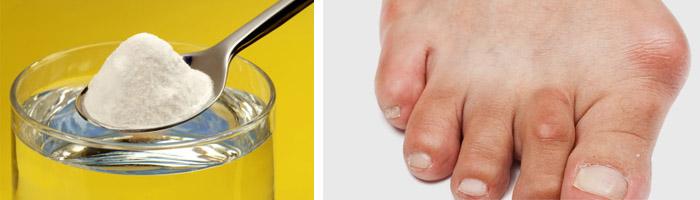 Лечение суставов содой