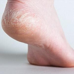 Мази от трещин на коже стоп и пяток