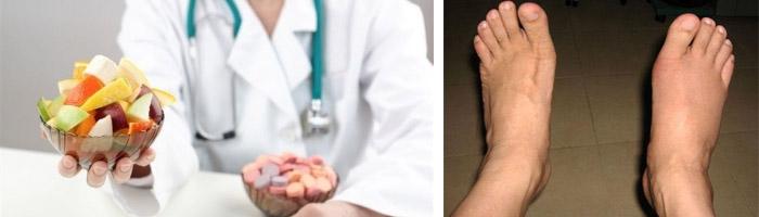 Питание при заболевании суставов