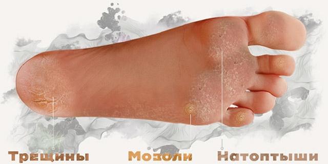 Повреждения кожных покровов