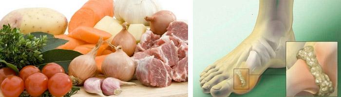 Правила питания при воспалении суставов