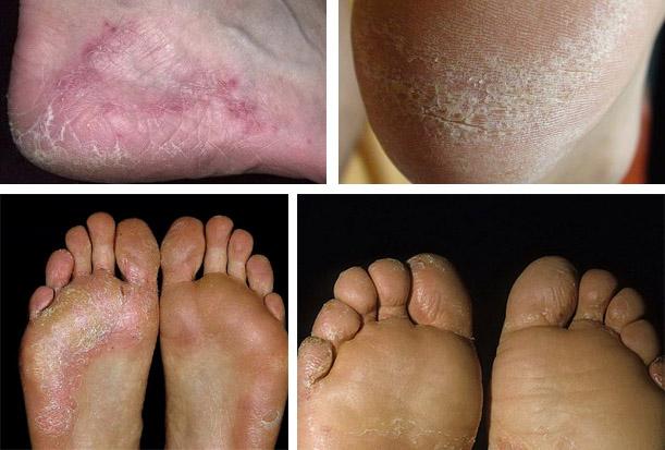 Признаки грибкового заболевания