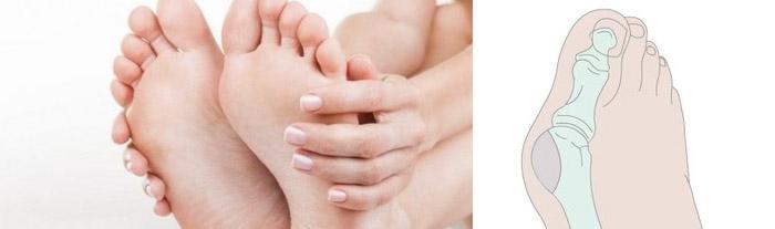 Способы устранения шишки на ноге