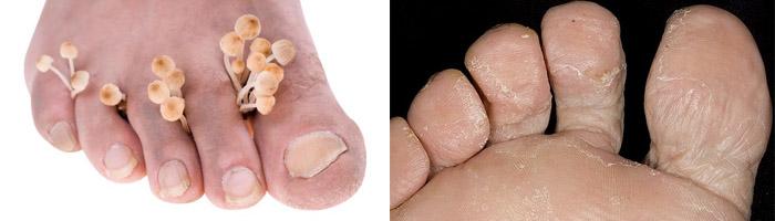 Терапия при грибке на ногах