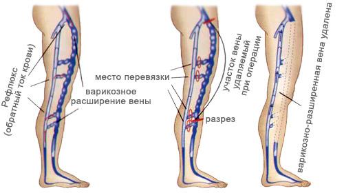 Удаление участка вены