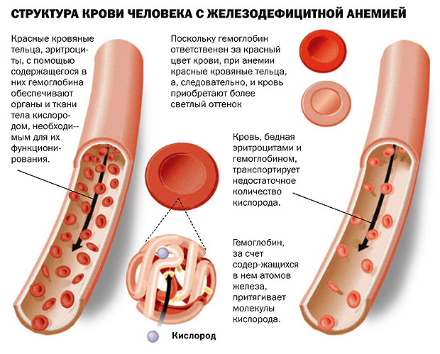 Что такое анемия