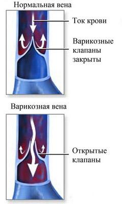 Что такое варикозная болезнь
