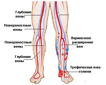Венозные язвы