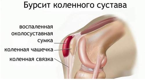 Воспалительный процесс коленного сустава