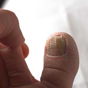 Ирунин для лечения грибковой инфекции ногтей