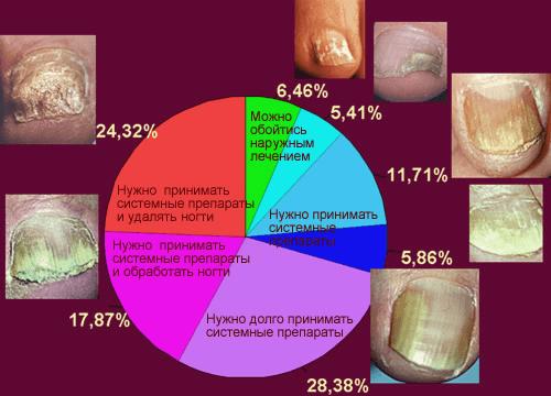 Как лечить заболевание ногтей