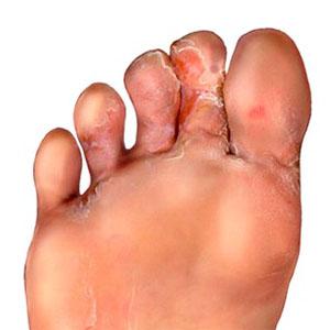 Как проявляется грибковая инфекция на ногах