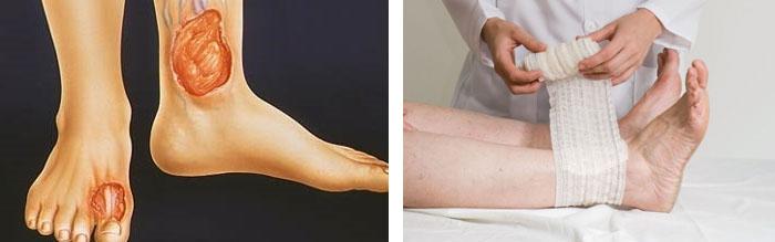 Как устранить воспаление на ногах