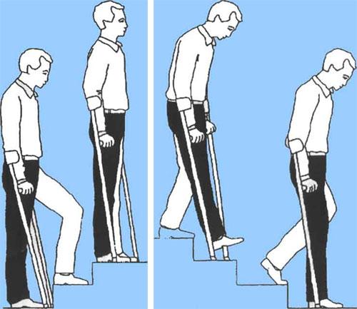 Как ходить по лестнице