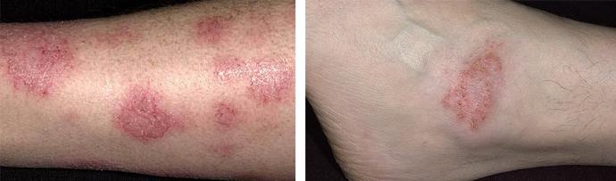 Повреждение кожных покровов