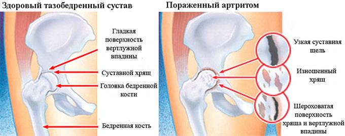 Поражение артритом