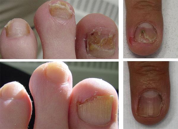 После лечения ногтей