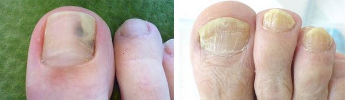 Признаки инфекции на ногтях