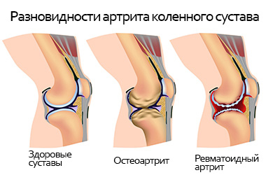Разновидности артрита