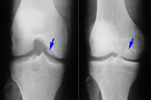 Рентгенограмма колена