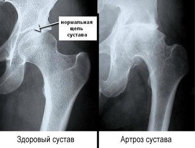 Рентгенография сустава