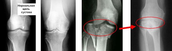Снимки поврежденных суставов