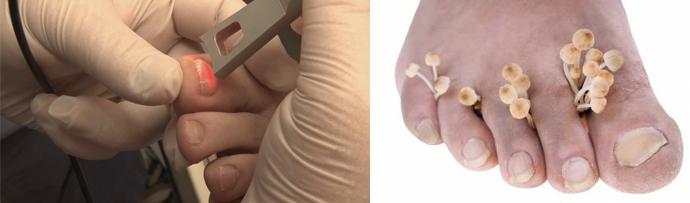 Терапия грибкового поражения