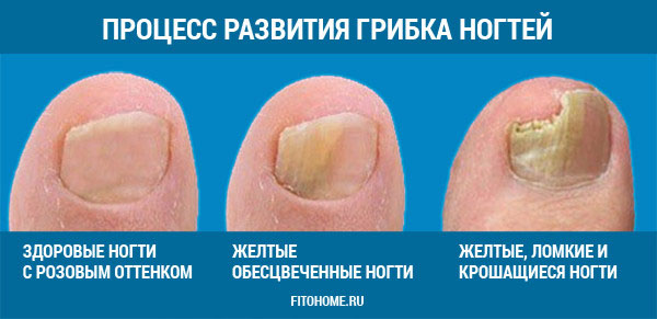 Грибковое заболевание