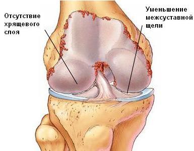 Деформация сустава