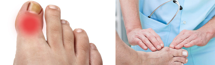 Заболевание суставов на ноге