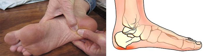 Как вылечить шпоры на ногах