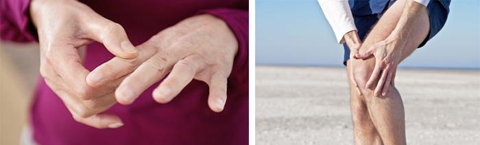 Как не допустить развития артрита