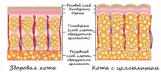 Как образуется целлюлит