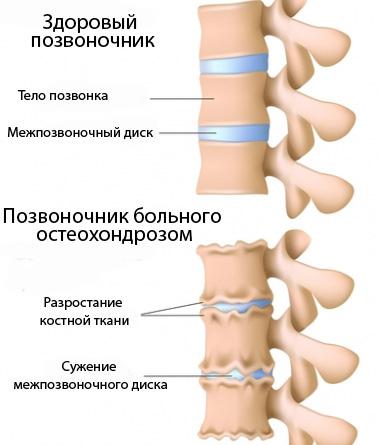 Как прояляется остеохондроз
