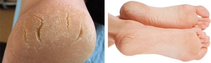 Как устранить трещины на коже