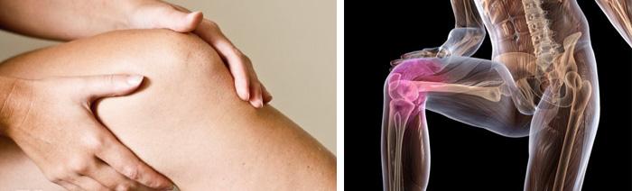 Особенности артрита и артроза