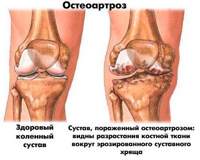 Остеоартроз колена