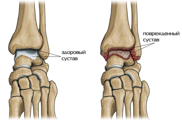 Повреждение кости