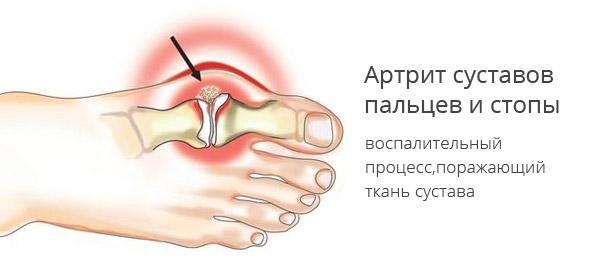 Проявления воспаления суставов
