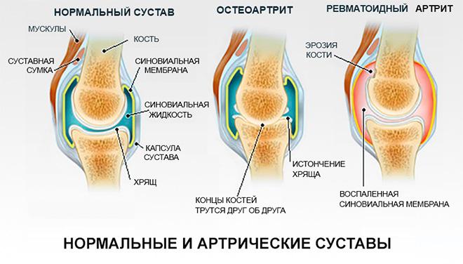 Разновидности патологий