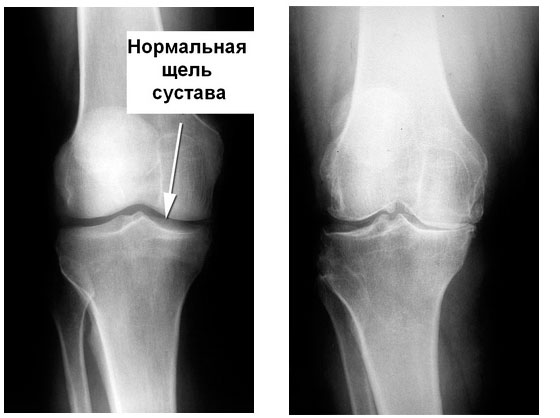 Разрушение хряща колена