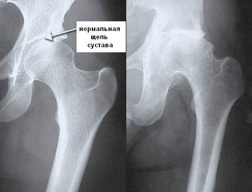 Рентгенографическое исследование