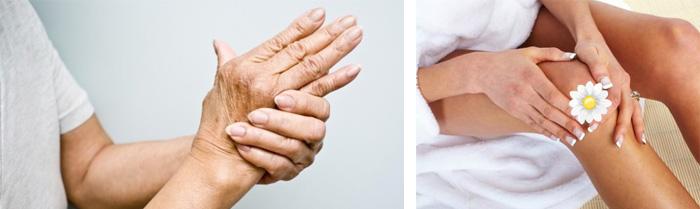 Самостоятельная терапия при артрите