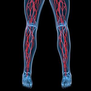 Ангиография сосудов ног - что это такое