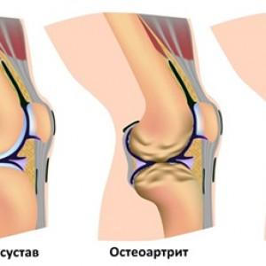 Артрит и остеоартрит