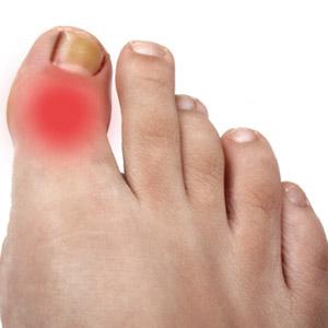 Артроз суставов на больших пальцах ног