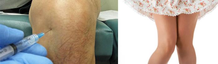 Блокада при поражении суставов